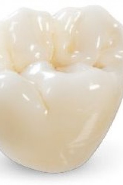 Ceramic-Crowns-in-Preston-Lancashire