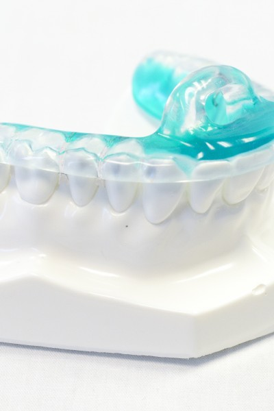 ON3 appliance can be fabricated with a Comfort Thermoform placed on the lower anteriors. This ensures maximum comfort.